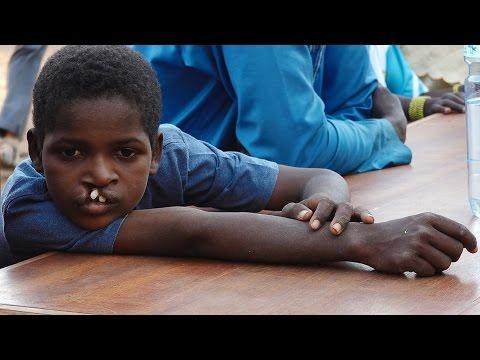 Dokumentation - Hilfe in Afrika - Schweizer Ärzte reisen nach Burkina Faso 2016