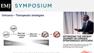 Optimizing the Patient Journey in Chronic Spontaneous Urticaria - Chairs Introduction