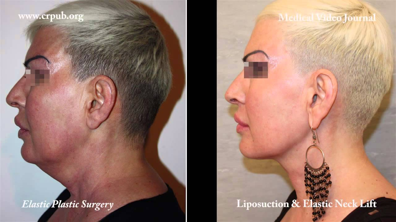 25) Double chin liposuction and immediate implantation of an ...
