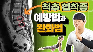 척추협착증에 좋은 운동
