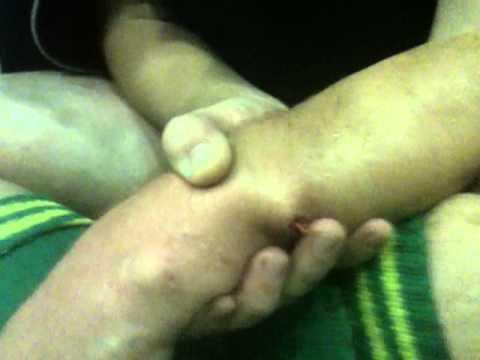 перелом руки открытый