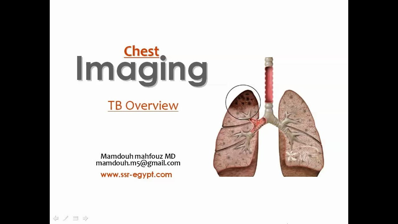 Imaging Of Tb Aug 2014 Dr Mamdouh Mahfouz In Arabic Youtube