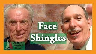 Face Shingles Treatment | Auburn Medical Group