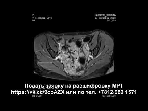 Расшифровка МРТ малого таза с кистой яичника и подозрением на рак шейки матки