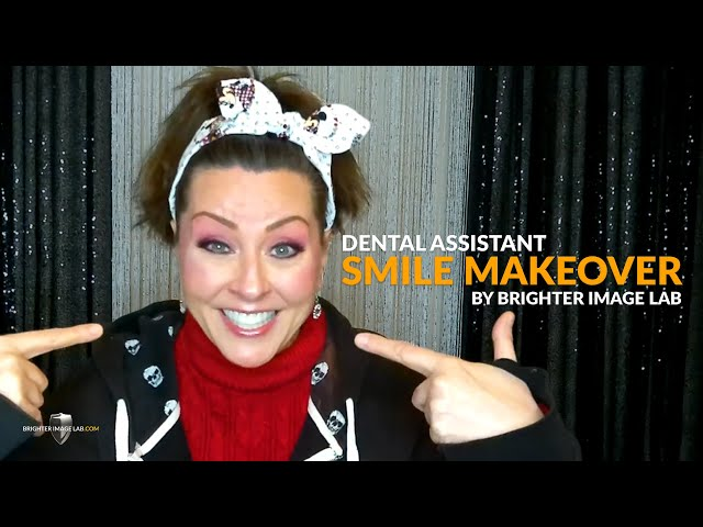 Dental Assistant Real Smile Makeover Review - No Dentist Dental Veneers by Brighter Image Lab
