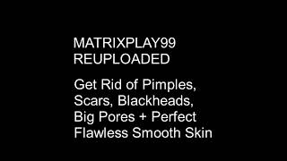 MATRIXPLAY99 Get Rid Of Pimples, Scars, Blackheads, Big Pores Perfect Flawless Smooth Skin