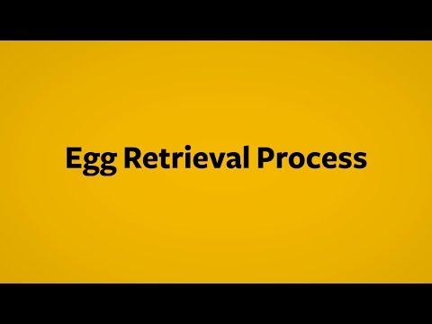 In Vitro Fertilization Egg Retrieval Process