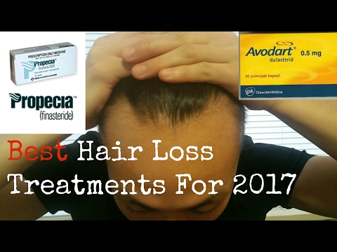 Best Hair Loss Treatments For 2017