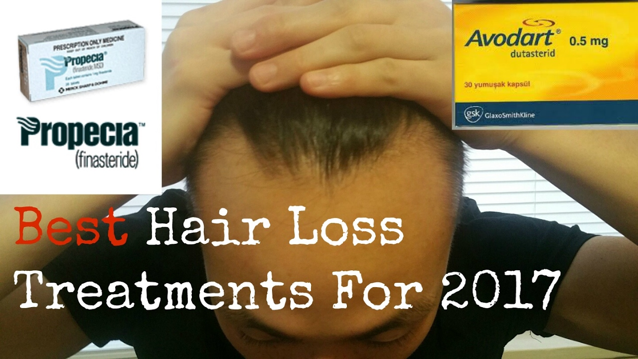 Best Hair Loss Treatments For 2017 - YouTube