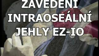 ZAVEDENÍ INTRAOSEÁLNÍ JEHLY EZ-IO (ZZS KHK)