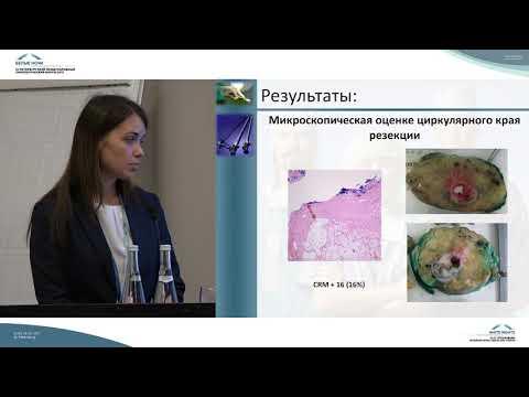 Сравнительный анализ результатов лапароскопических и открытых вмешательств при раке прямой кишки