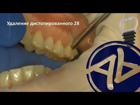 Удаление дистопированного зуба мудрости 28 001 Апокин А.Д. 4K