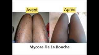 mycose bouche