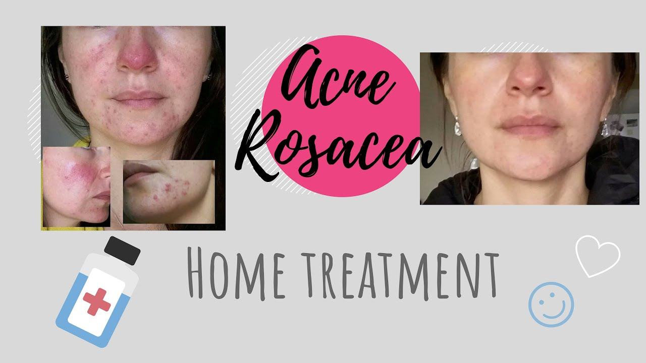 Acne Rosacea Home Treatment In English Youtube