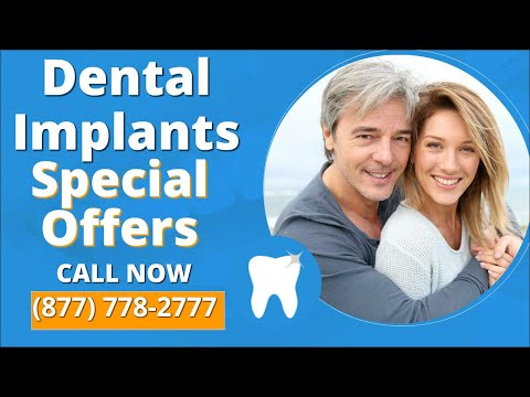 Cost of Dental Implants San Ramon Ca Dentist Special Offers Deals and 5 Star Dentist Reviews