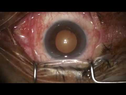 Cataract Surgery In Pseudoexfoliative Glaucoma Patient