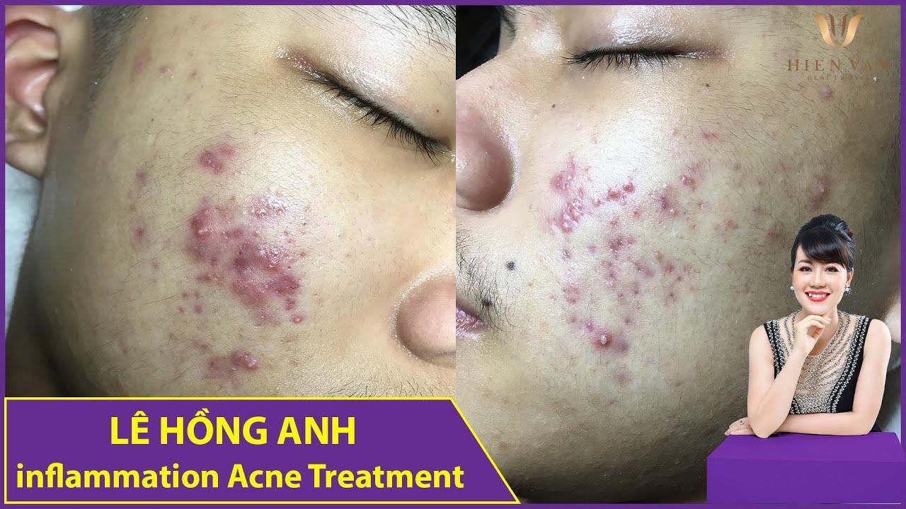 Inflammation Acne Treatment | Điều trị mụn hiệu quả số 1 TPHCM| Hiền Vân Spa|Lê Hồng Anh| 558