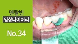 Mn premolar immediate placement \u0026 immediate loading with Ezi crown with septum drill [#Dentalbean]