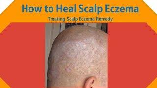 How to Heal Scalp Eczema - Treating Scalp Eczema