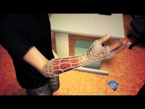 Tech Report | Osteoid 3D Printed Cast