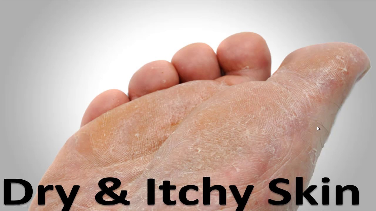 Athlete\'s Foot Fungus Home Cure: **Try this trick just ONCE* - YouTube