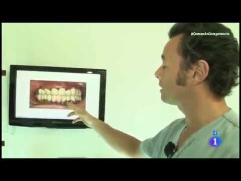 Reportaje - Precio y calidad de implantes dentales - Comando actualidad