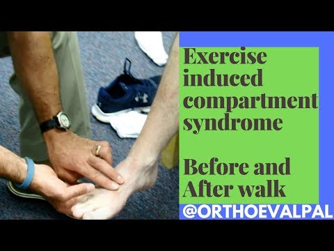 Exercise Induced Compartment Syndrome Signs And Symptoms