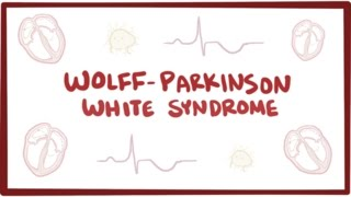 Wolff-Parkinson-White syndrome (WPW) - causes, symptoms & pathology