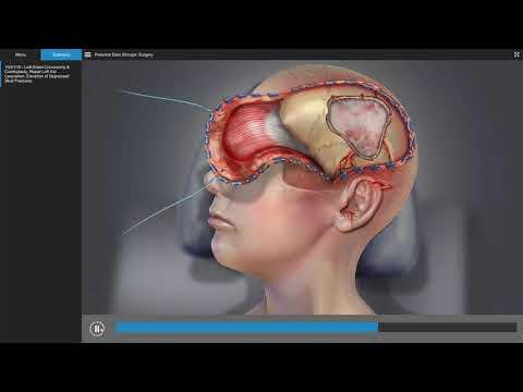 Traumatic Brain Injury - Brain Surgery Animation