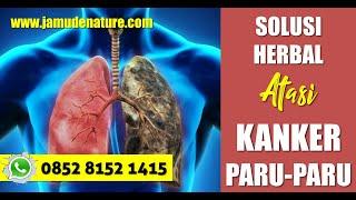OBAT KANKER PARU PARU ALAMI || Cara Mengobati Kanker Paru Secara Aman Khasiat Obat Kanker De Nature .