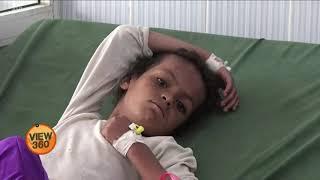 Famine in Yemen: Aisha Khalid