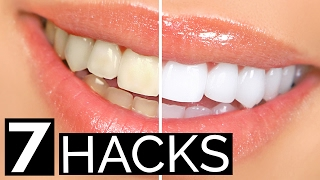 7 Stupidly Simple Teeth Whitening Hacks You Can Do At Home | Hack My Life #14