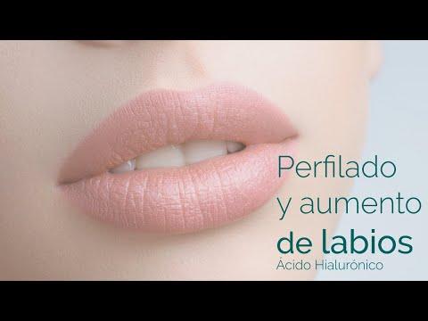 Perfilado aumento de labios Dr Torres Fortich Santiago España