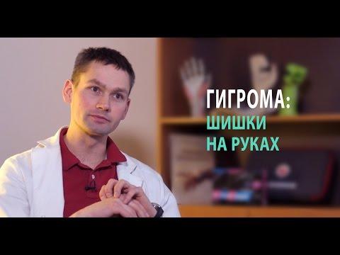 Гигрома запястья: лечение без операции народными