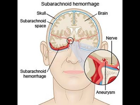 Image result for subarachnoid hemorrhage