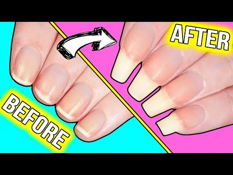 Thumbnail: How to GROW YOUR NAILS FAST*!!! (actually helpful information)