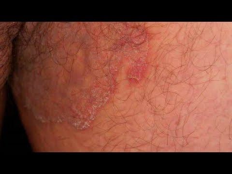 Jock Itch Home Treatment|5 ways to Cure Jock Itch Fast,Jock Itch Home Remedy