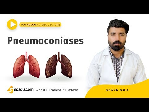 pneumoconioses-|-pathology-tutorials-|-medical-education-|-v-learning-|-sqadia.com