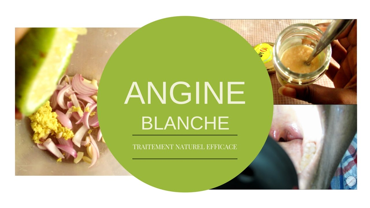 angine blanche traitement naturel efficace 3 jours youtube