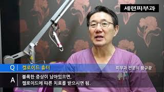 켈로이드 흉터 체질; 염증후 켈로이드 예방 치료