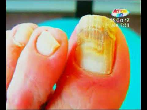las uñas picadas curan la diabetes