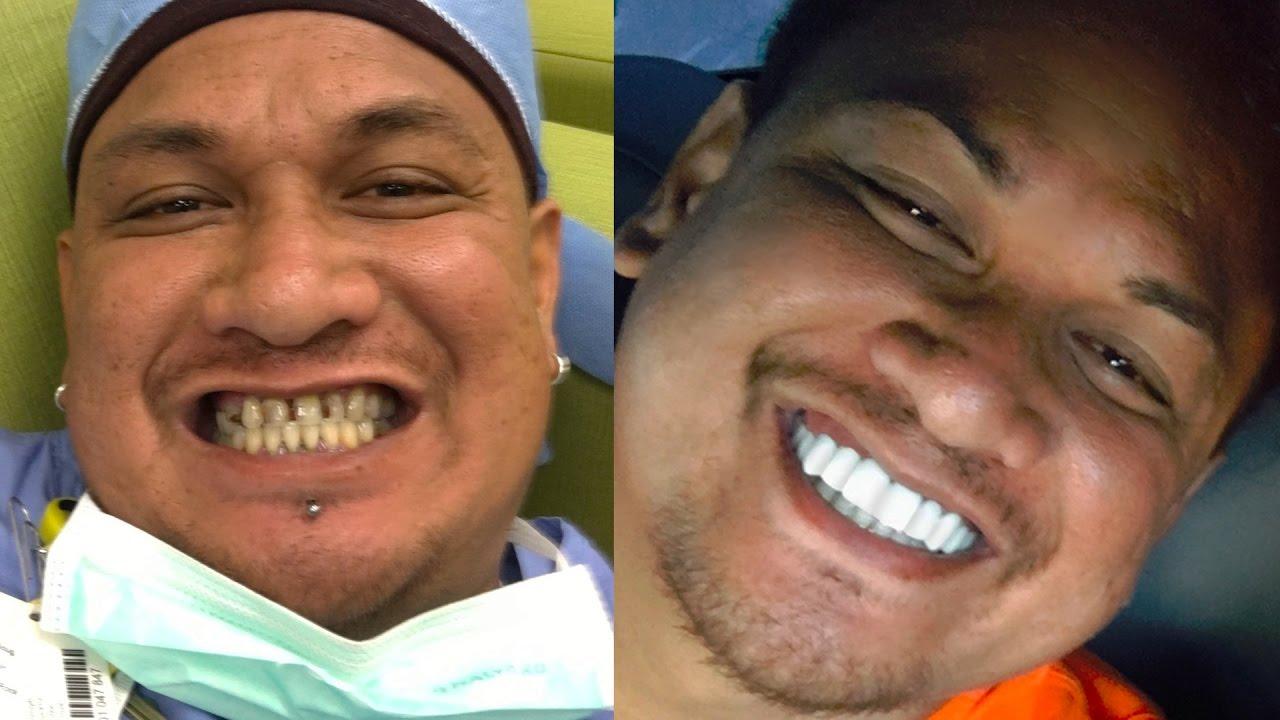 Youtube Video New Epic Smile Makeover Bil Veneers - Brighter Image Lab - Hawaii
