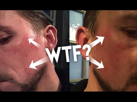 WTF! THE HOLLYWOOD FACIAL DID THIS TO ME!