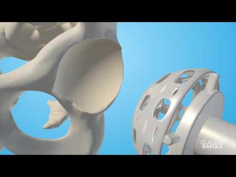 Cirugía de Reemplazo de Cadera por Artrosis