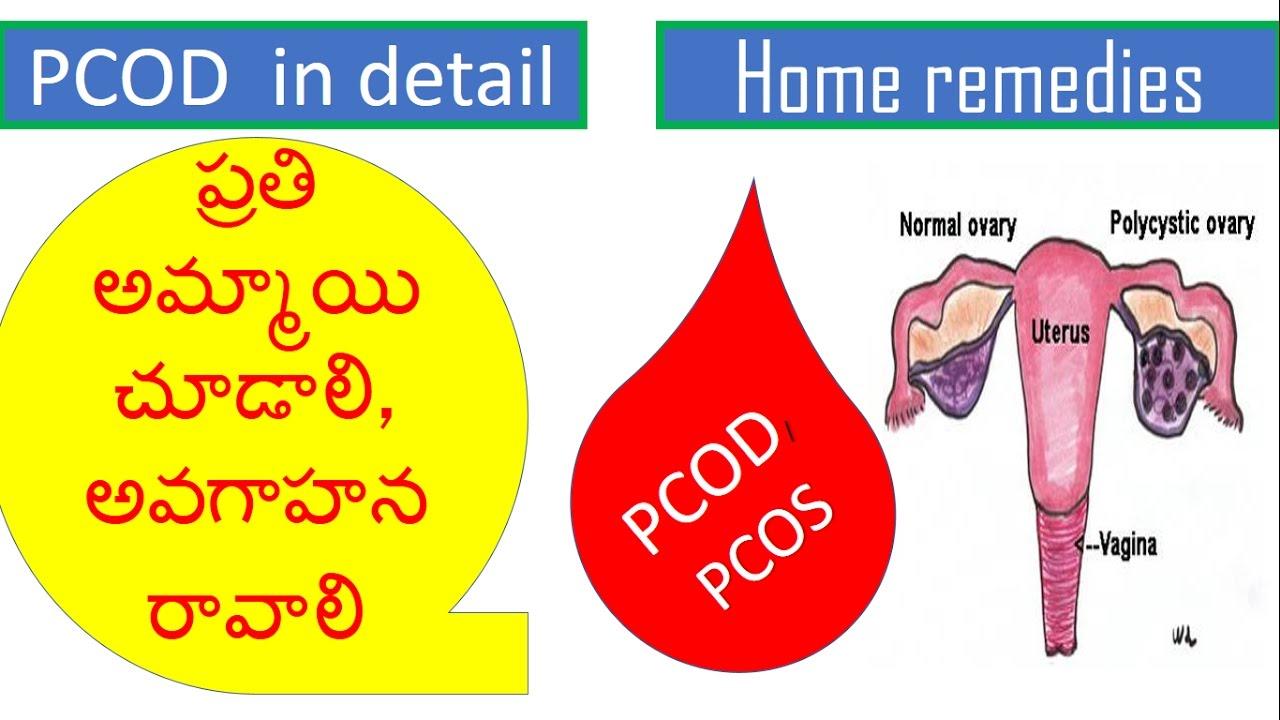 pcos diet plan in telugu