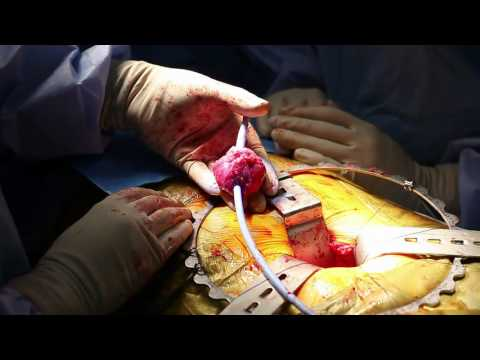 Open Radical prostate operation