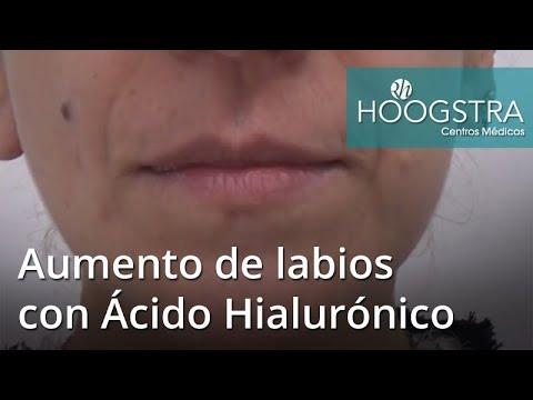 Aumento de labios con Ácido Hialurónico (18124)