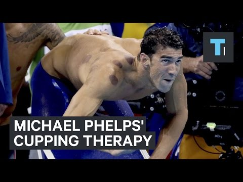 Michael Phelps' cupping therapy