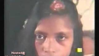 Repeat youtube video Abused and Raped Pakistani Woman shows off her Bullet Wound   The YNC com