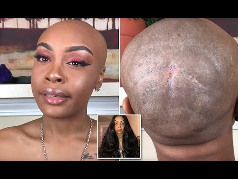 Image result for weave damage to hair